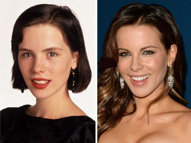 Did Kate Beckinsale Really Have The Plastic Surgery?