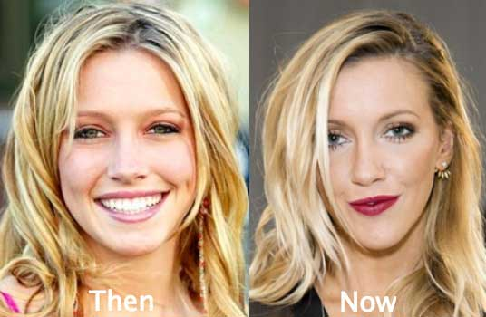 Katie Cassidy, The Actress Who Got Obsessed With The Cosmetic Surgery