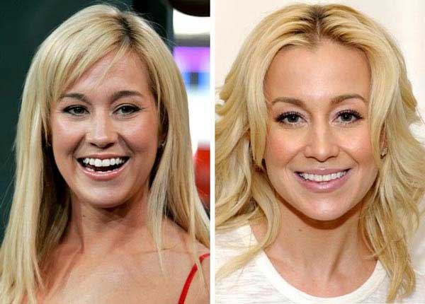 Kellie Pickles Plastic Surgery Scandals – The Actress Managed To Get Beauty Enhancement