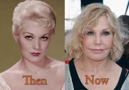 Did Kim Novak Have Plastic Surgery? Look at The Result!