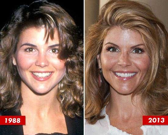 Lori Loughlin Plastic Surgery Scandals-The Flawless Knife Work Behind The Flawless Beauty